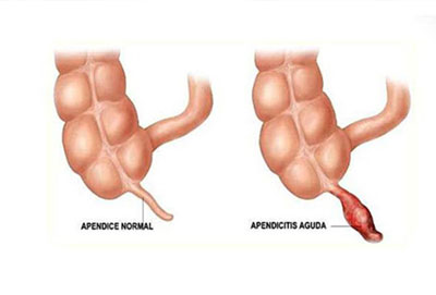 apendicitis-apendice-inflamada-dr valdivia-lima