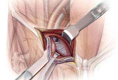 herniorrafia-cirugia-clasica-abierta-lima-dr valdivia