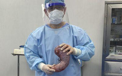 Manga Gástrica y Bypass Gástrico: Cómo echar a perder una Cirugía Bariátrica